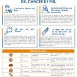 thumbnail of prevencion-del-cancer.-regla-del-abcde-en-la-deteccion-del-cancer-de-piel